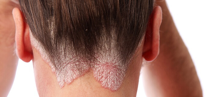 Best Treatment For Scalp Psoriasis