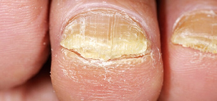 Toe Nail Psoriasis Treatment